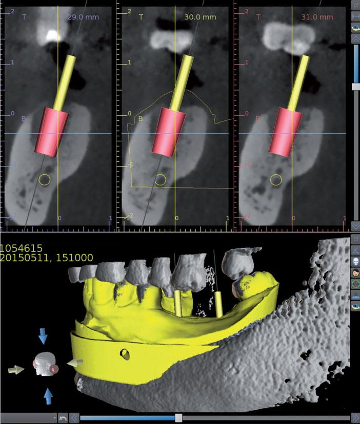 Tiges-modelises-au-niveau-de-l-axe-des-implants