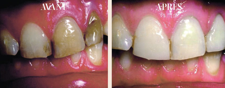blanchiment-sur-dents-non-vitales-par-voie-interne