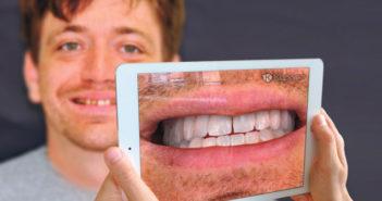 Un-logiciel-pour-projeter-son-futur-sourire