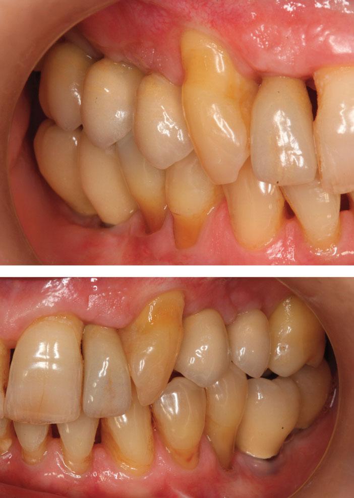 couronnes-ceramo-metalliques-transvissees-sur-implant