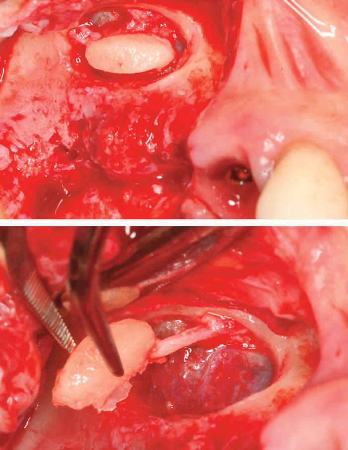 declinaison-du-volet-osseux-lateral