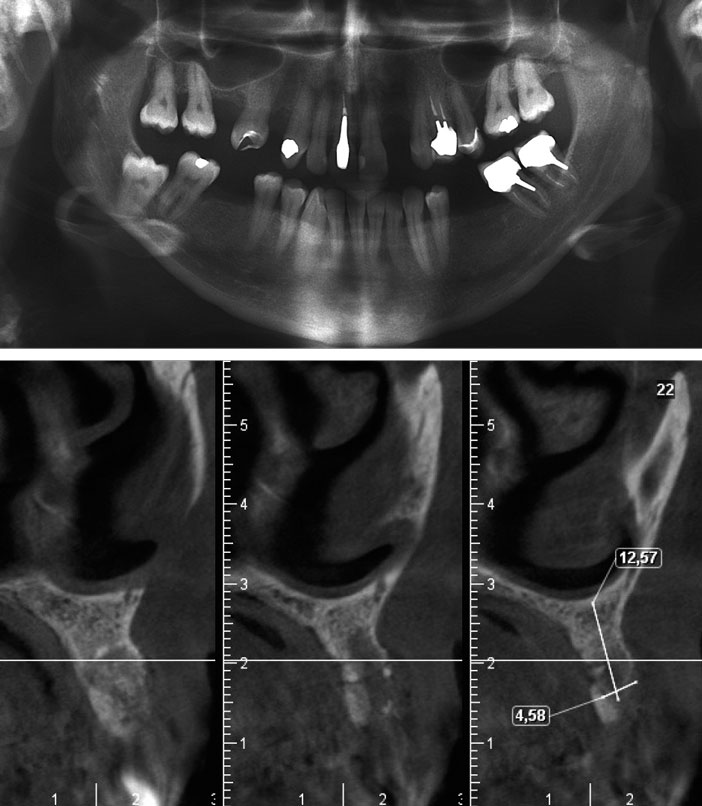 radiographie-panoramique