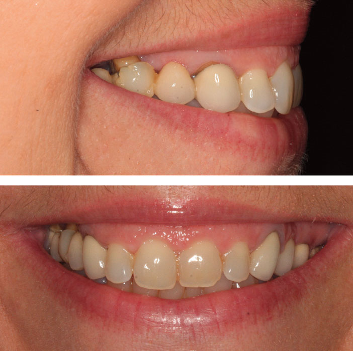 reconstruction-du-prolongement-du-mur-gingival