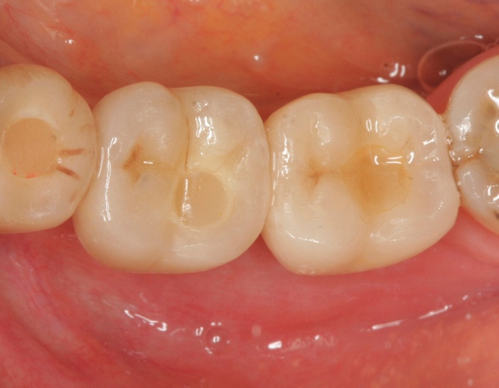 vue occlusale de la restauration sur les implants