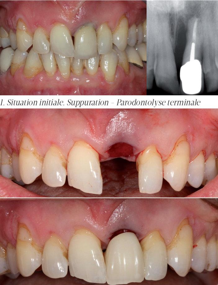 Parodontolyse-terminale