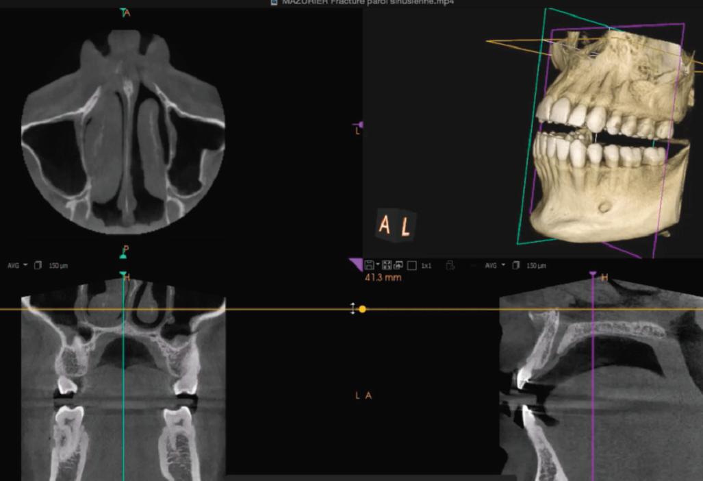 L-imagerie 3D