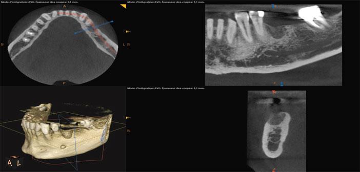 etude-pre-implantaire