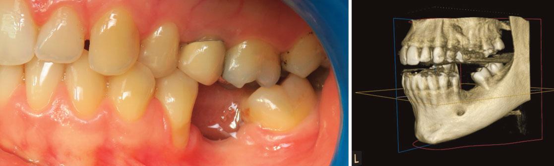 Le-risque-anatomique-de-la-region-mandibulaire