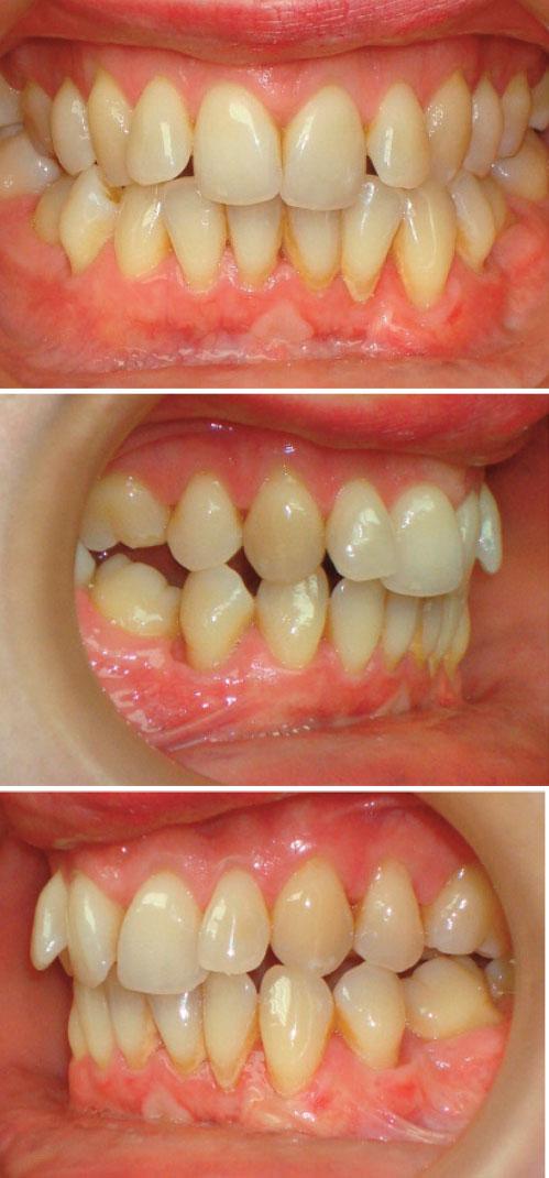 amelioration-du-parodonte