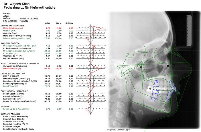 analyse-cephalometrique-laterale