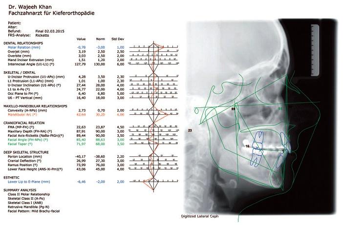 analyse cephalometrique laterale