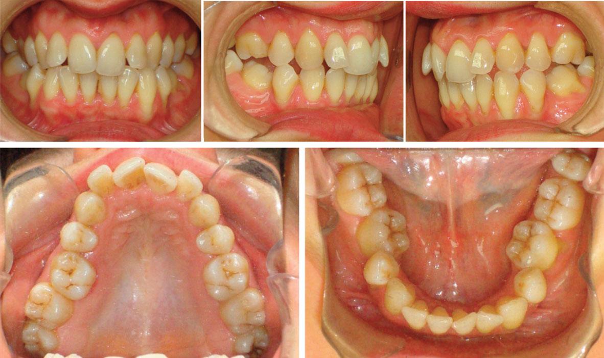 arcades-dentaires-etape-initiale