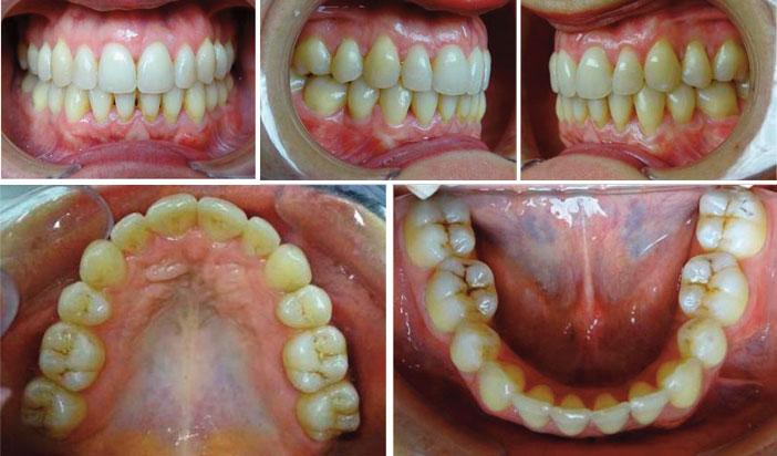 arcades-dentaires