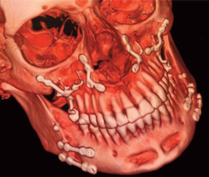 assemblage-du-puzzle-et-au-maxillaire-droit