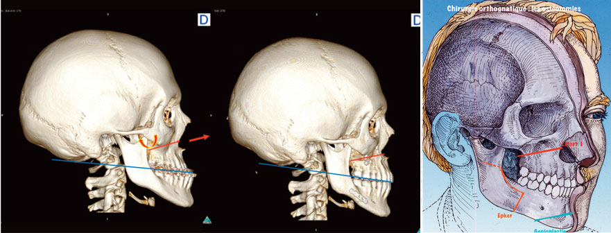 avancee-du-maxillaire