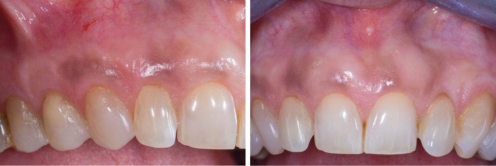 cicatrisation-a-2-ans-post-operatoire