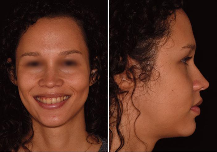 de-profil-le-visage-est-harmonieux