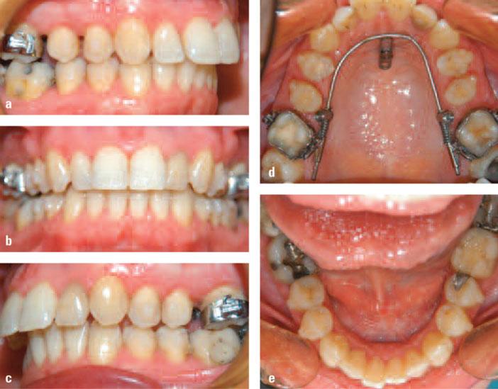 etat-avant-le-debut-du-traitement-Orthocaps