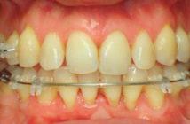 gerer-les-subtilites-anatomiques-du-traitement-orthodontique-de-l-adulte