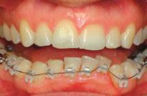 interet-de-la-chirurgie-orthognathique