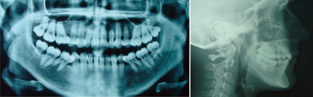 panoramique-dentaire-et-teleradiographie