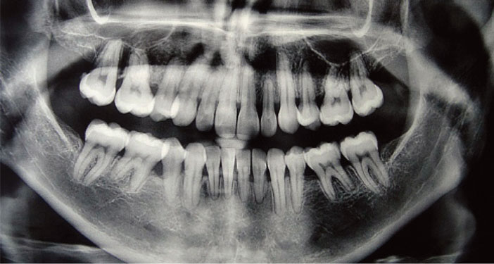 panoramique-dentaire