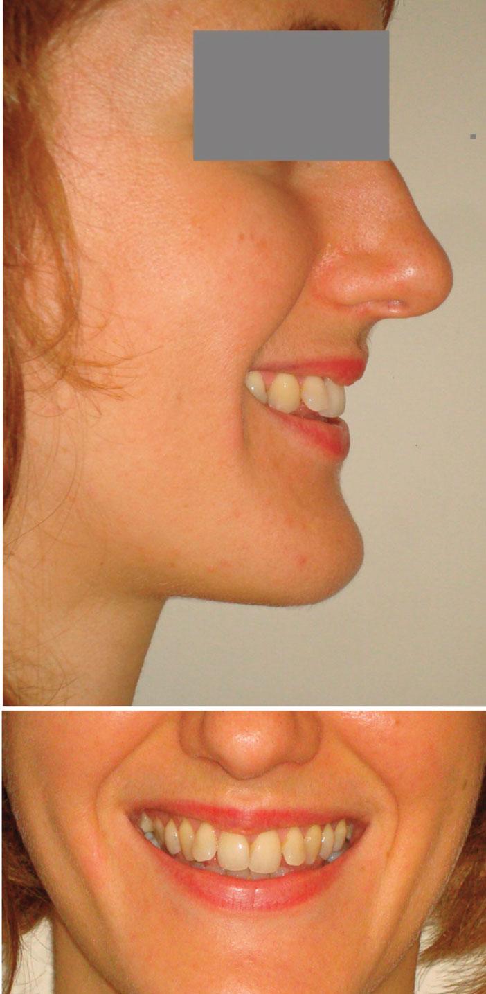 photographies-du-sourire-etape-initiale
