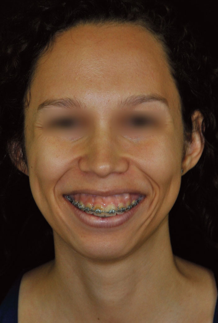 sourire-gingival