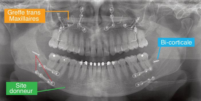 vue-panoramique-post-operatoire