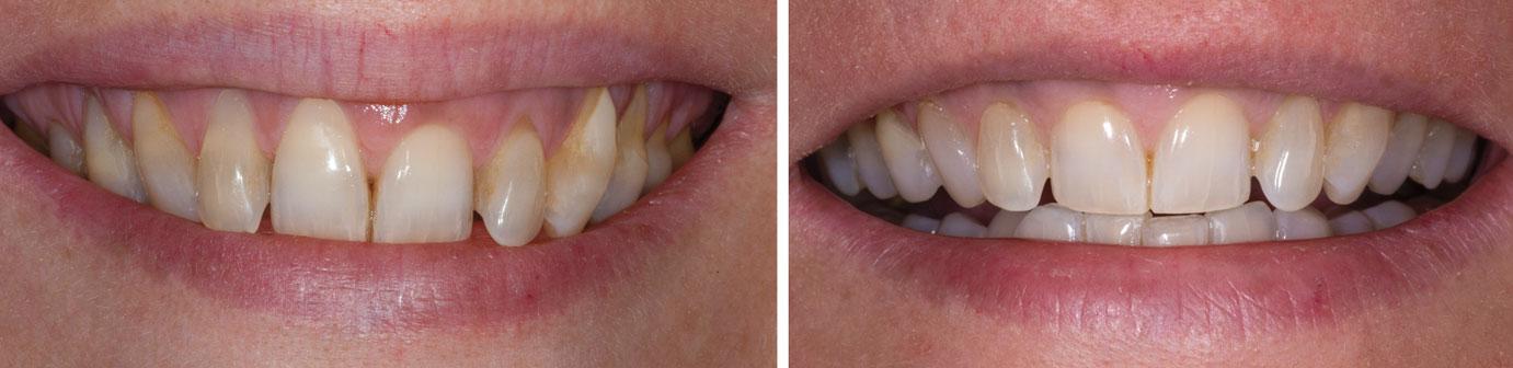 vues-du-sourire-avant-et-apres-traitement-chirurgical