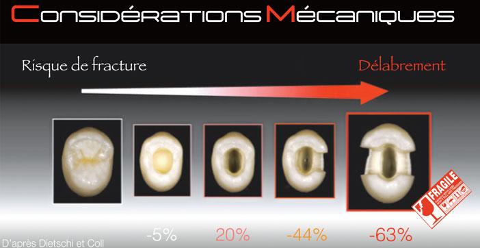 consideration-mecanique