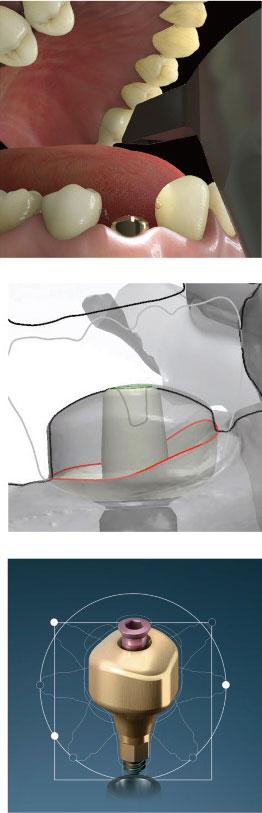 lrelation-dentiste-prothesiste-vue-par-lyra