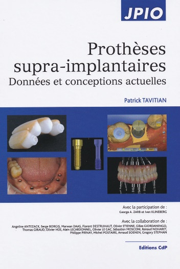 protheses supra-implantaires