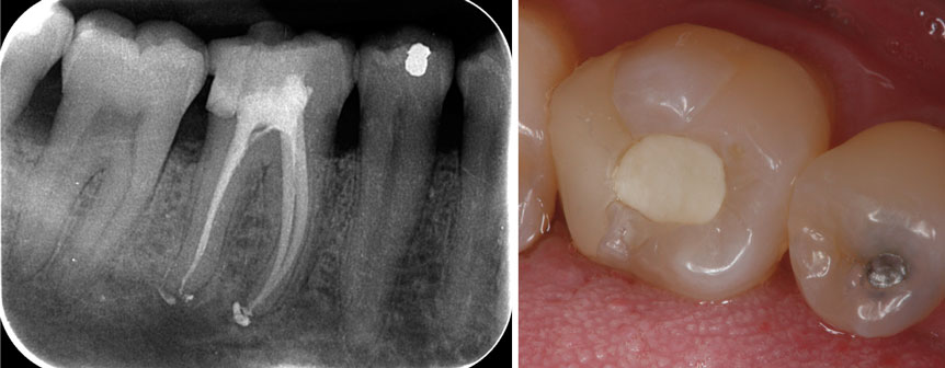 radiographie-du-traitement-endodontique