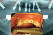 Gestion-de-l-atrophie-osseuse-sous-sinusienne