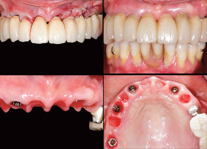 cicatrisation-et-maturation-gingivale