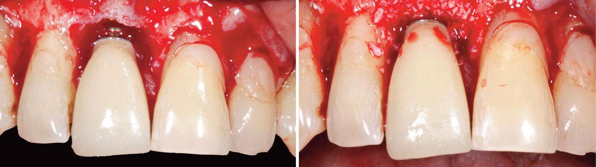 dent-provisoire-transvissee