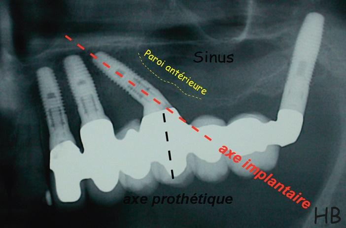 implant angule