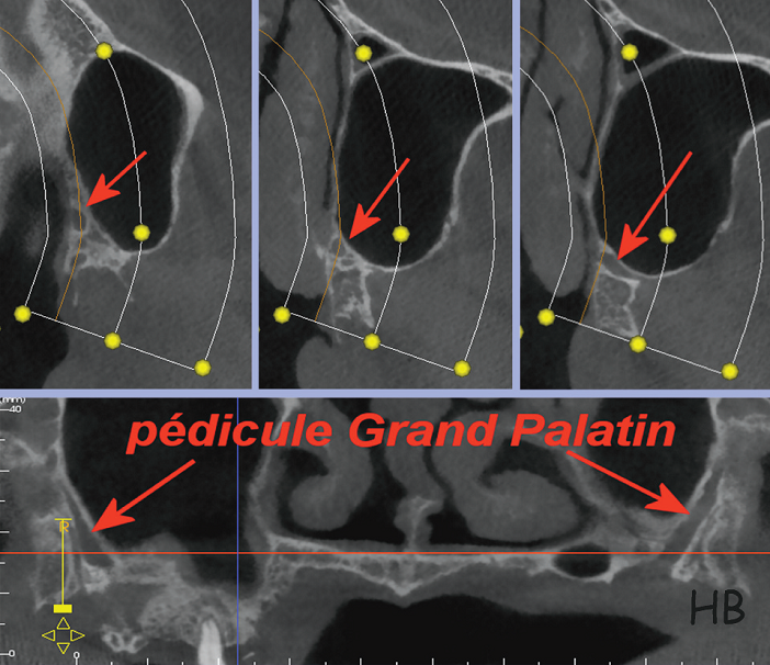 pedicule grand palatin
