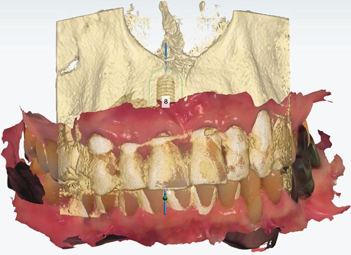 planification-d-un-implant-Straumann
