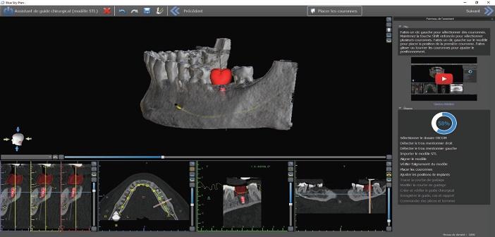 previsualisation du projet implantaire