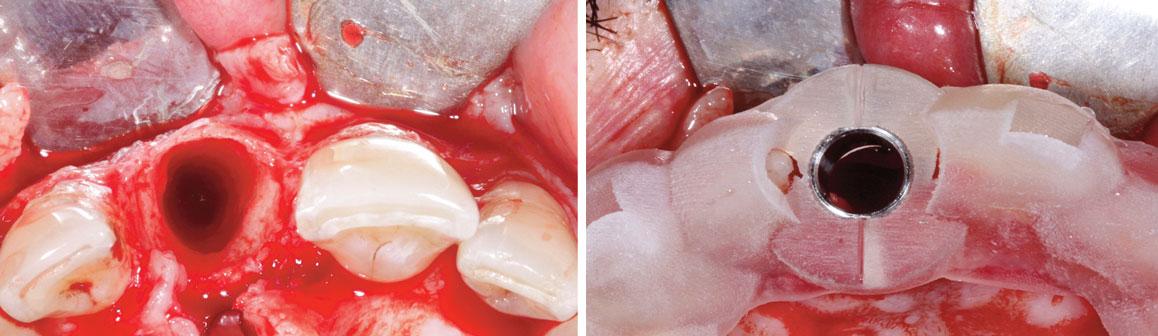 site-alveolaire-apres-extraction