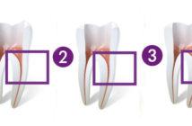 etapes-d-un-traitement-endodontique-reussi