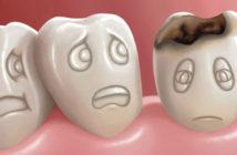 test-salivaire-qui-detecte-l-erosion-dentaire
