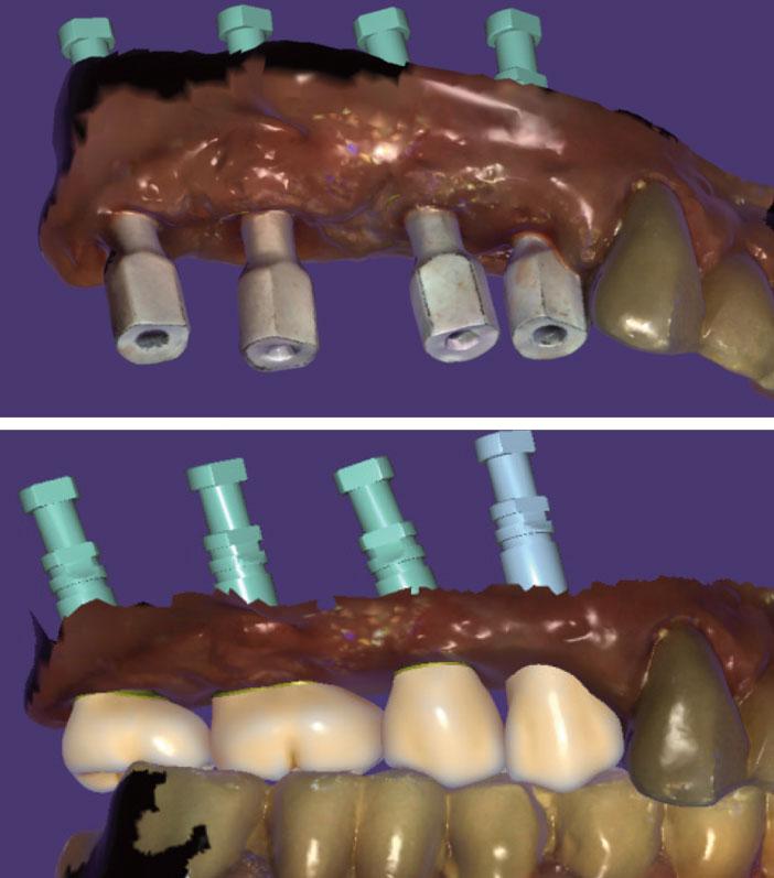 traitement-implantaire