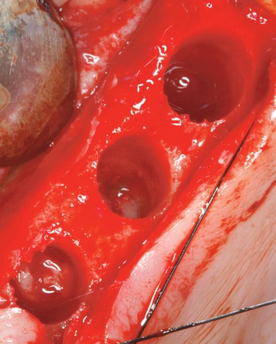 corticale sinusale avec la fraise