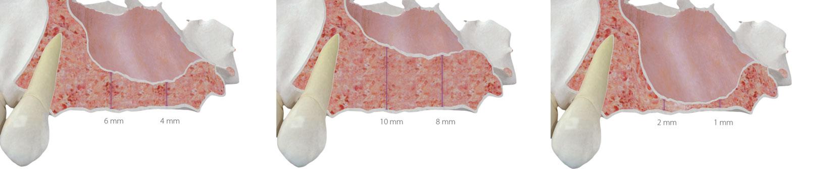 estimation-de-la-hauteur-osseuse