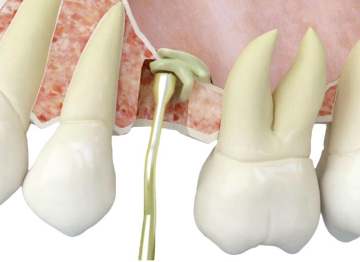 insertion-de-fibrine