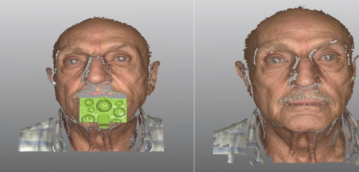Scan facial avec fourche