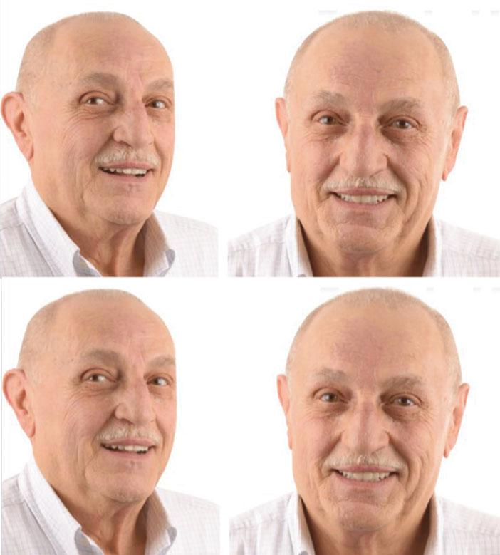evaluation-esthetiqueet-proportions-du-visage